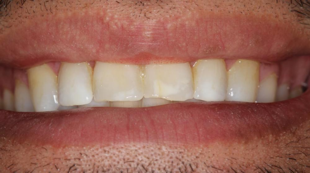 decalcification-teeth-after-braces-fix