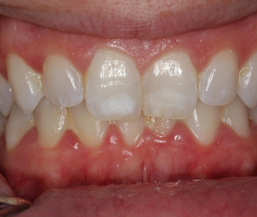 front-tooth-white-spots-remove