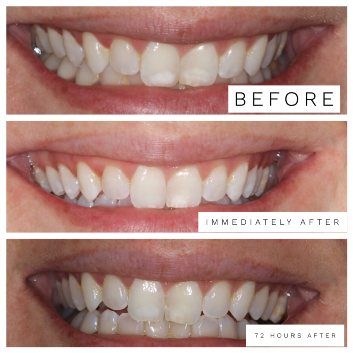 Getting rid of white spots on front teeth caused by braces and decalcification