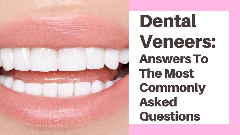 Answering common questions such as how much do dental veneers cost, are dental veneers safe and more