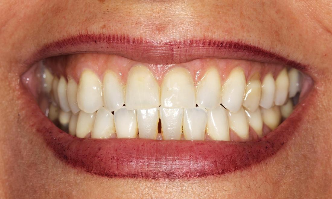 Cosmetic Dentistry Gum Recession Treatment