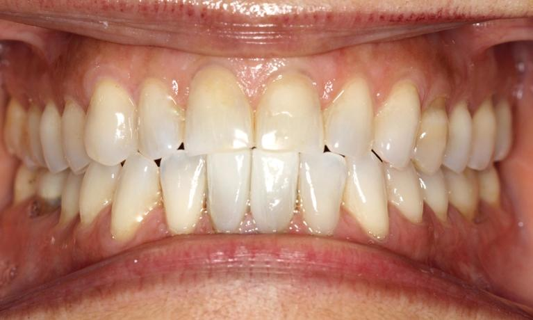 Excess Dental Space Treatment