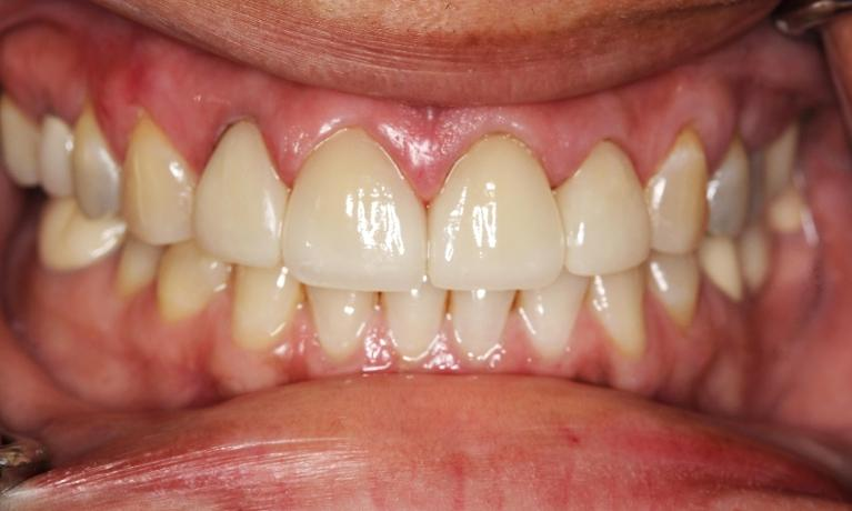 dental-veneers-mission-viejo