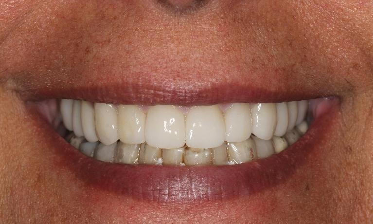 cosmetic-dentistry-worn-teeth