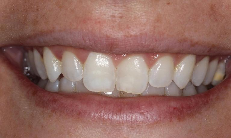 ICON-fix-front-tooth-white-spots