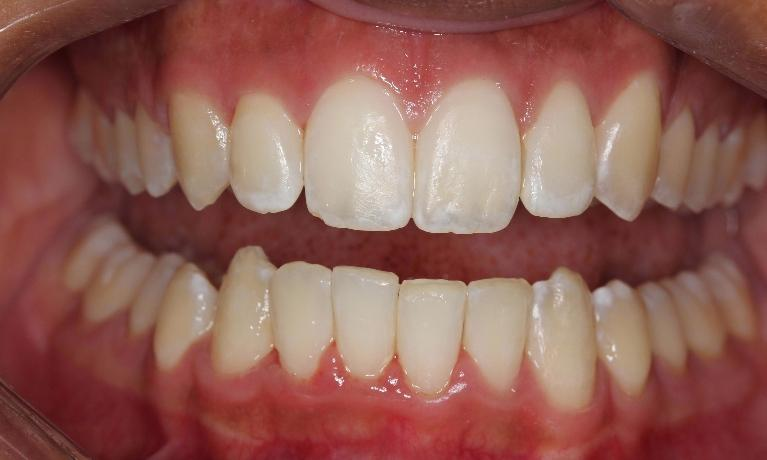 Teeth-Straightening-After-Image