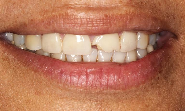 dental-veneers-orange-county