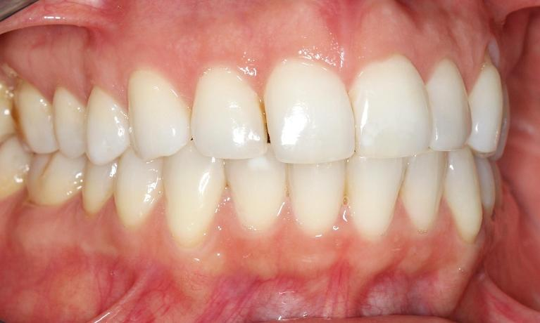 Closing Spaces In Teeth Mission Viejo