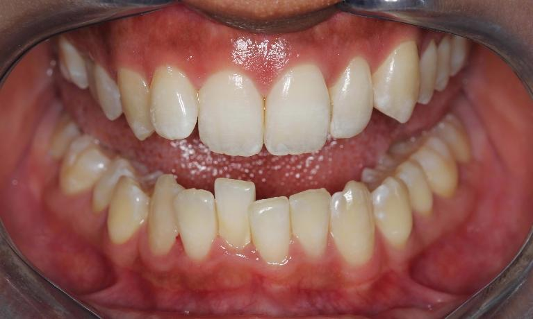 Teeth-Straightening-Before-Image